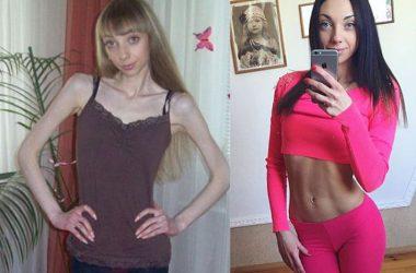 Анорексия: до и после (фото)