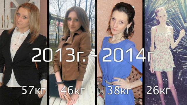 Анна Егрчукова тогда и сейчас: победа над анорексией